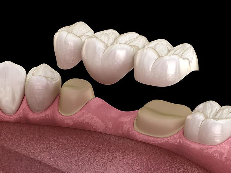 Nên làm cầu răng hay cấy ghép implant