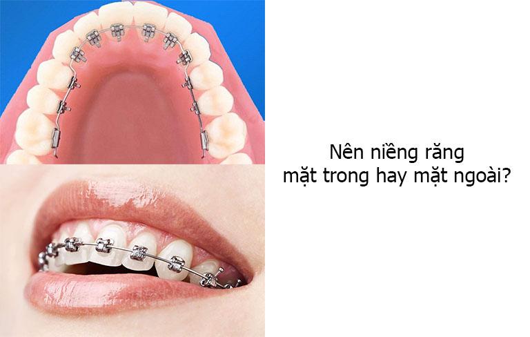 Nên niềng răng mặt trong hay mặt ngoài