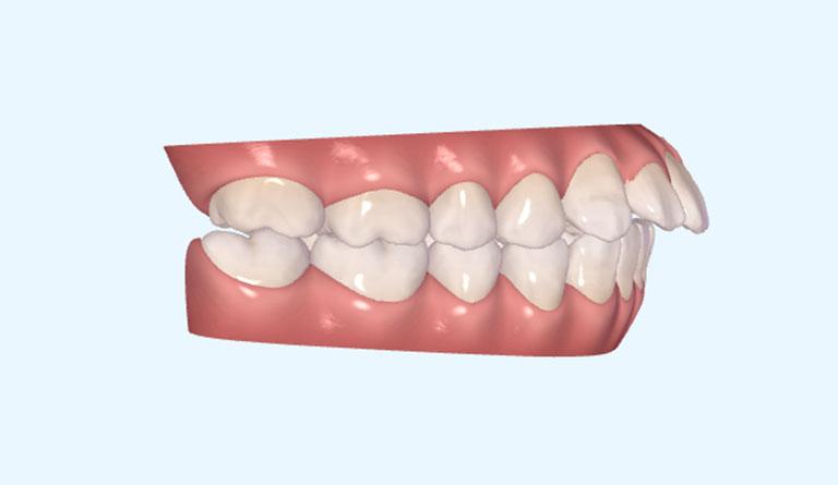 làm sao biết hô hàm hay hô răng