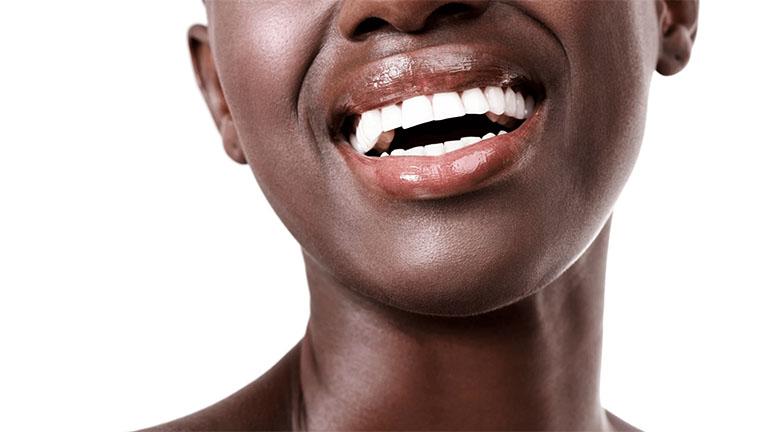 hô hàm hay hô răng