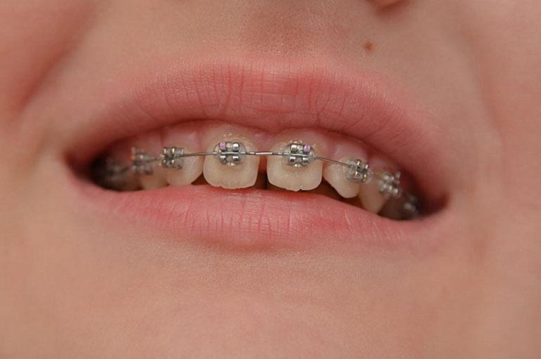 niềng 2 răng cửa giá bao nhiêu