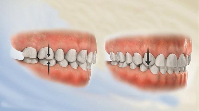 Niềng răng 1 hàm trên giá bao nhiêu