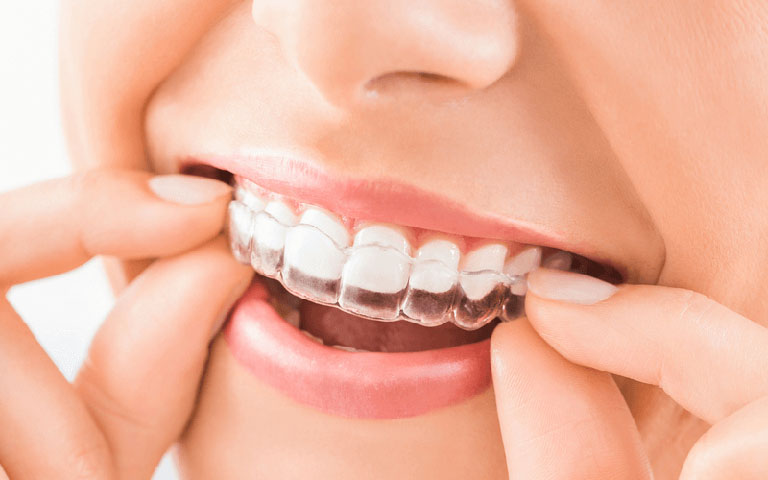 niềng răng 1 hàm hết bao nhiêu tiền