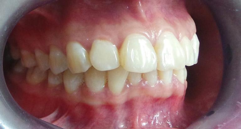 niềng răng bằng nhựa giá bao nhiêu