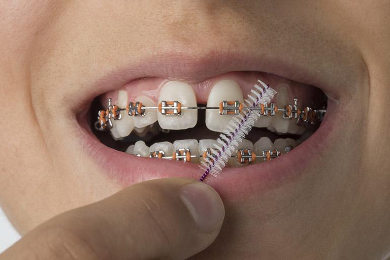 niềng răng bị lung lay có sao không