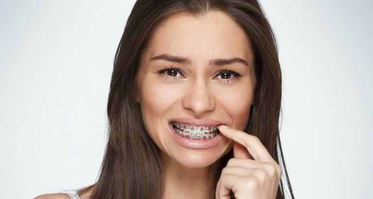 Niềng răng bị lung lay