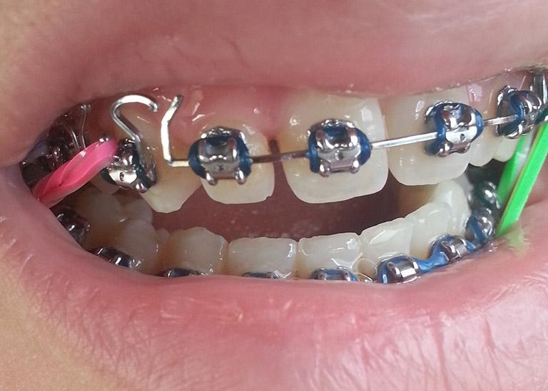 niềng răng bị tuột dây cung