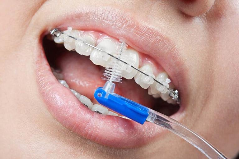 dây cung niềng răng bị lỏng