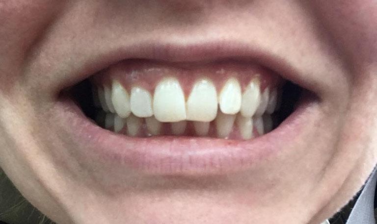 Niềng răng cắm minivis