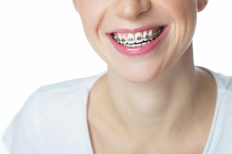 niềng răng có hết lệch hàm