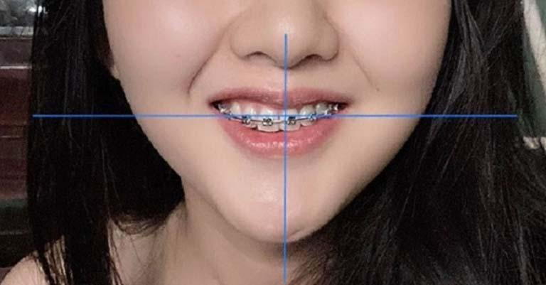 niềng răng chỉnh hàm lệch giá bao nhiêu