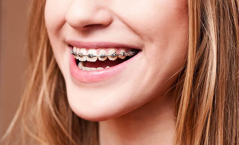 niềng răng có ảnh hưởng đến thần kinh không