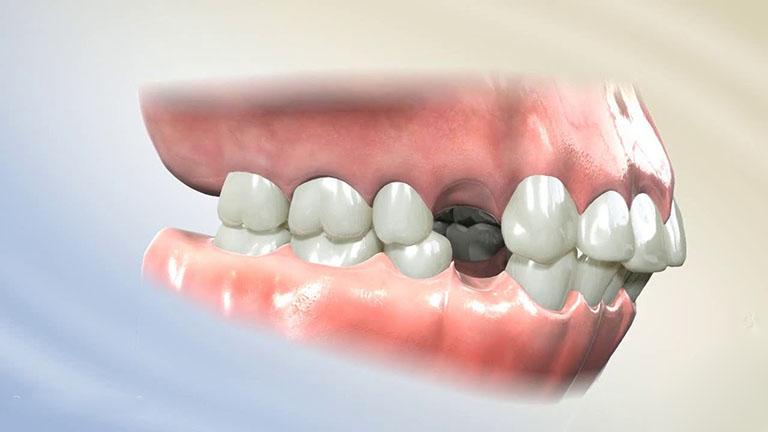 nhổ răng khi niềng