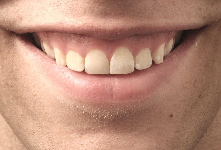 Niềng răng có khắc phục được cười hở lợi không
