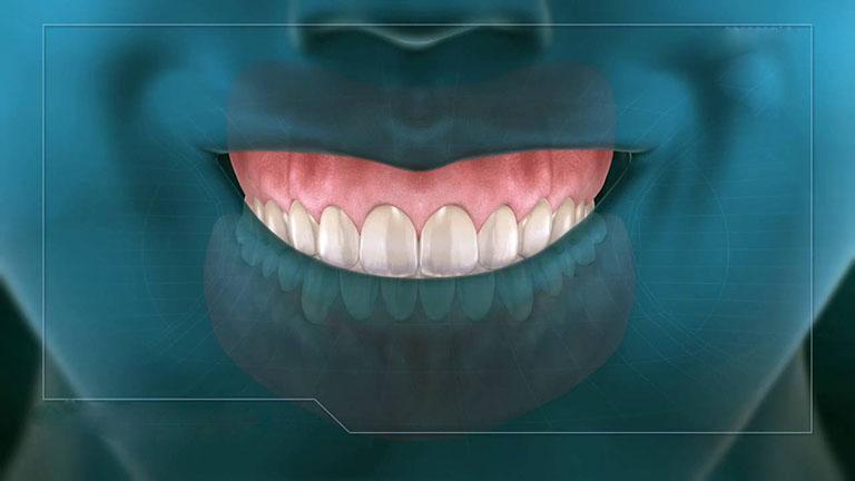 niềng răng có hết cười hở lợi không