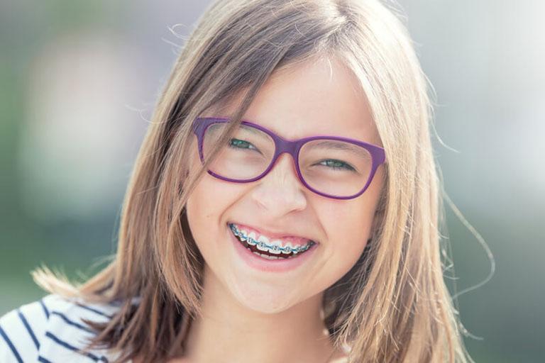 Niềng răng làm thay đổi khuôn mặt