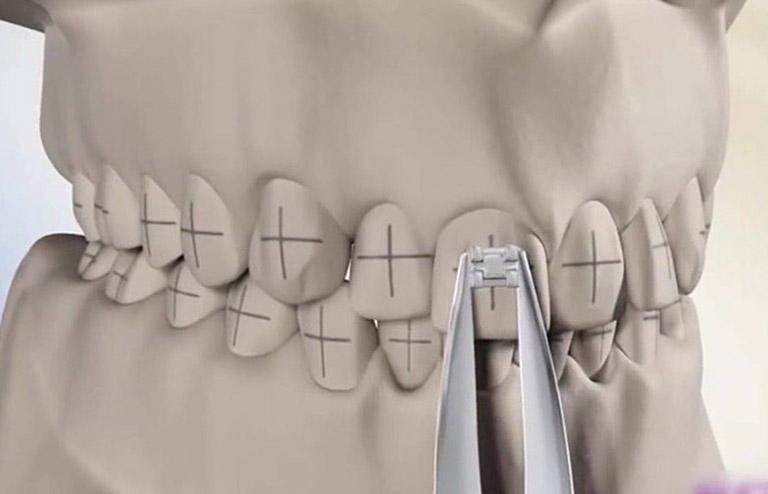 niềng răng có mấy giai đoạn