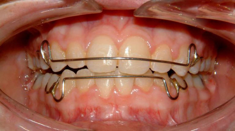 Niềng răng hỏng