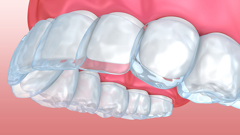 khay niềng răng invisalign trong suốt