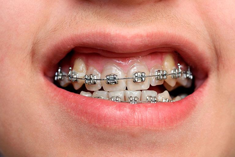 niềng răng khấp khểnh bao nhiêu tiền