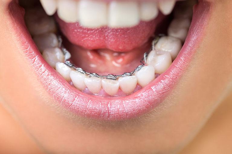 các bước niềng răng khấp khểnh