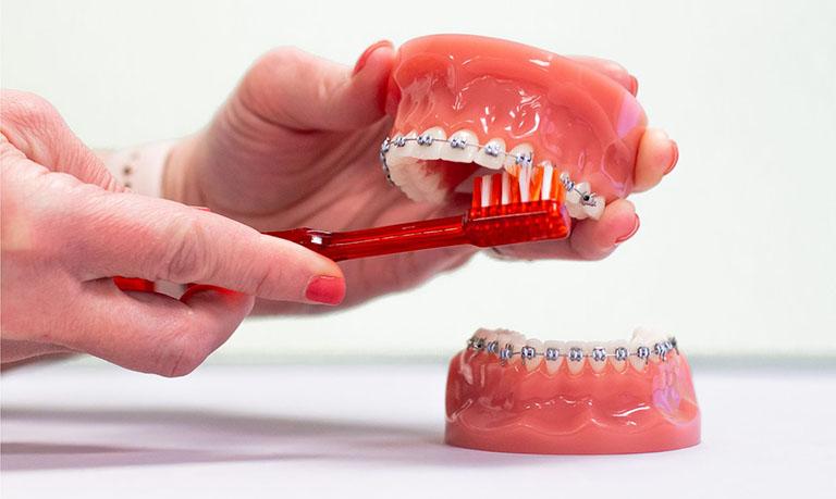 quá trình niềng răng khấp khểnh