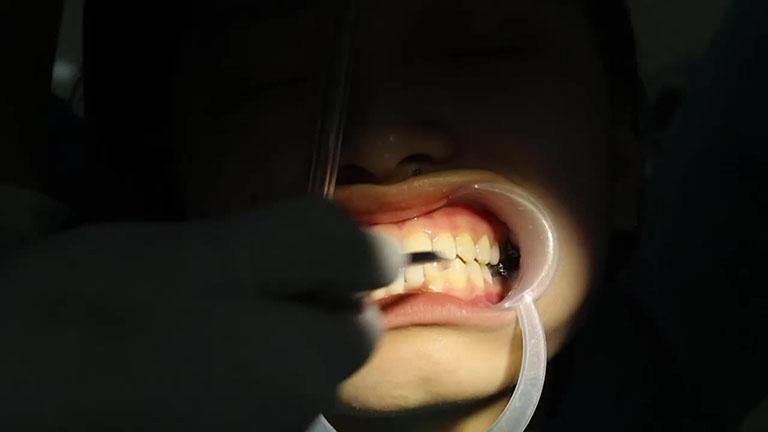 có nên niềng răng khểnh không