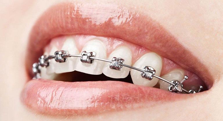 niềng răng khểnh mất bao nhiêu tiền