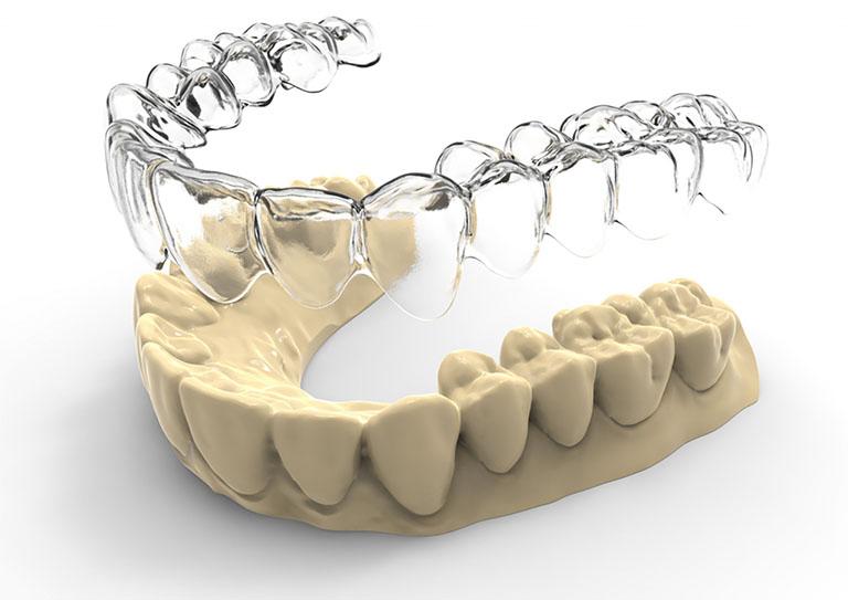 niềng răng 3d clear giá bao nhiêu