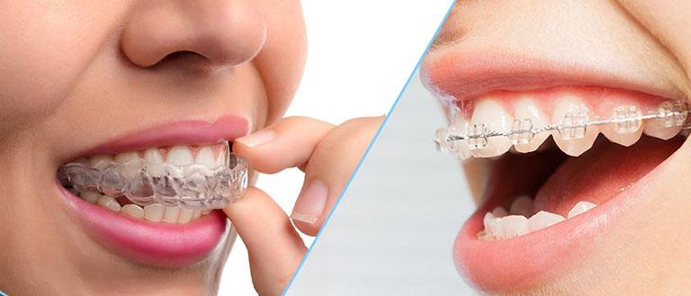 niềng răng 3d clear – 6 tháng đến 1 năm