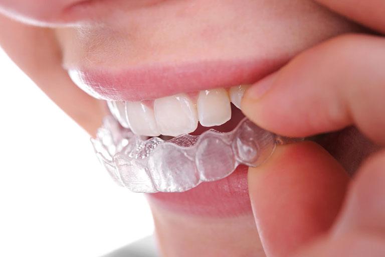 niềng răng không mắc cài ecligner