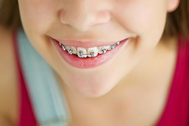 niềng răng không nhổ răng bao nhiêu tiền
