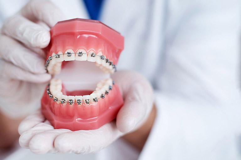Niềng răng không nhổ răng có hiệu quả không