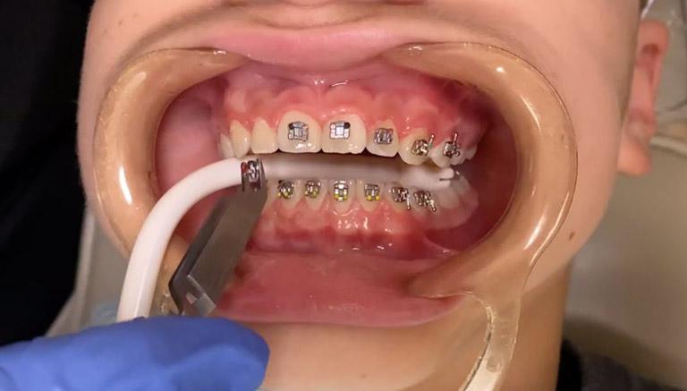 niềng răng lệch khớp cắn bao lâu