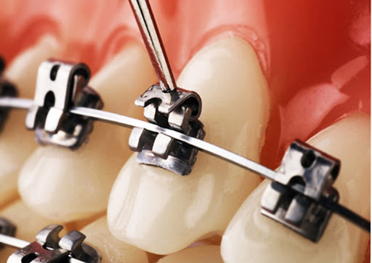 Niềng răng mắc cài kim loại tự buộc
