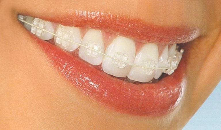 Niềng răng mắc cài pha lê