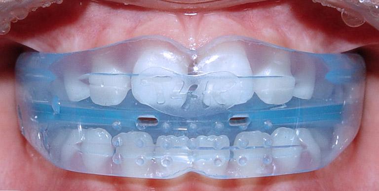 Niềng răng silicon trainer