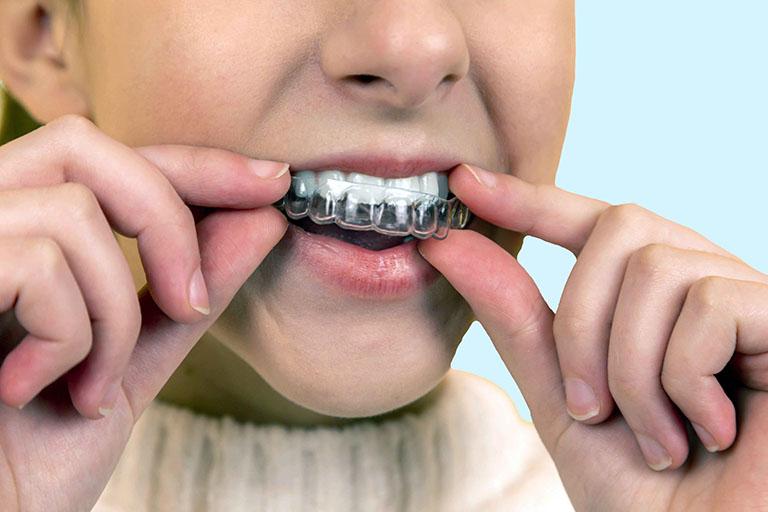 Niềng răng trong suốt có phải nhổ răng không