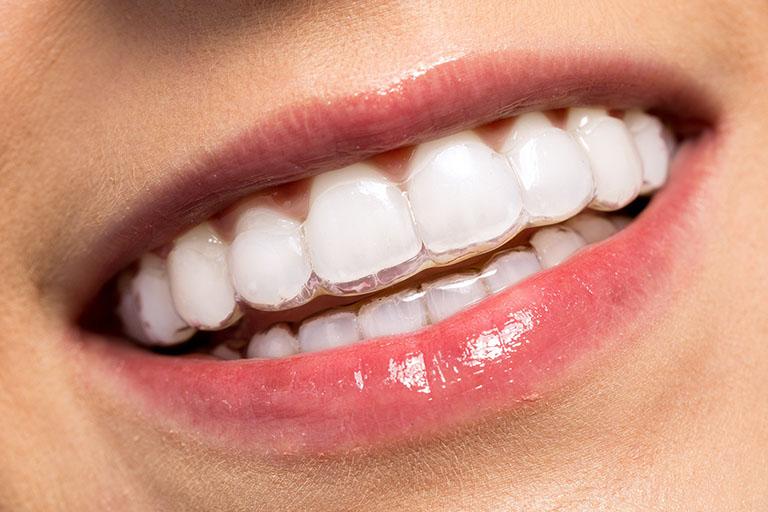 niềng răng trong suốt invisalign giá bao nhiêu