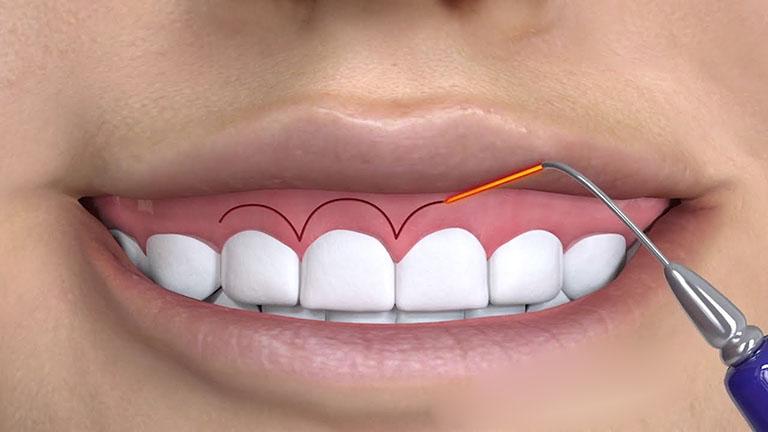 niềng răng xong bị hở lợi