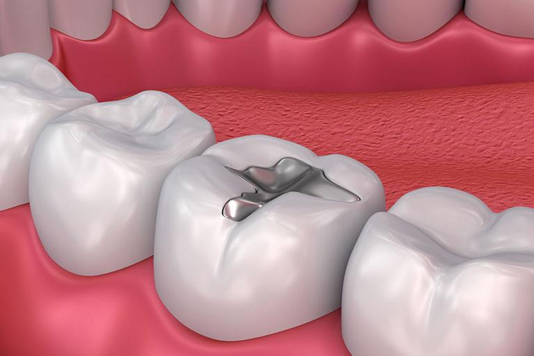 phục hình răng là làm gì