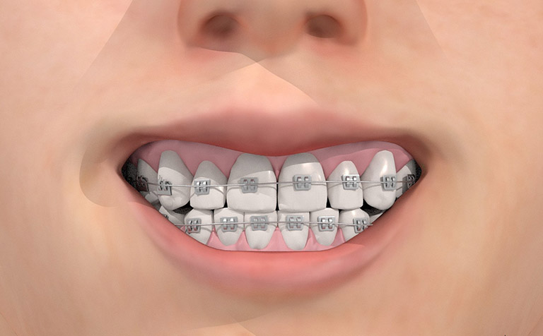 Răng bị lung lay có niềng được không