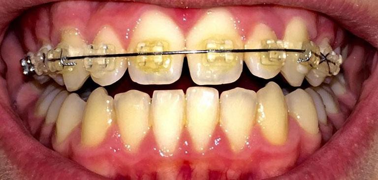 răng bị ố vàng khi niềng răng
