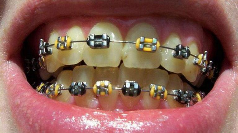 Răng bị ố vàng khi niềng
