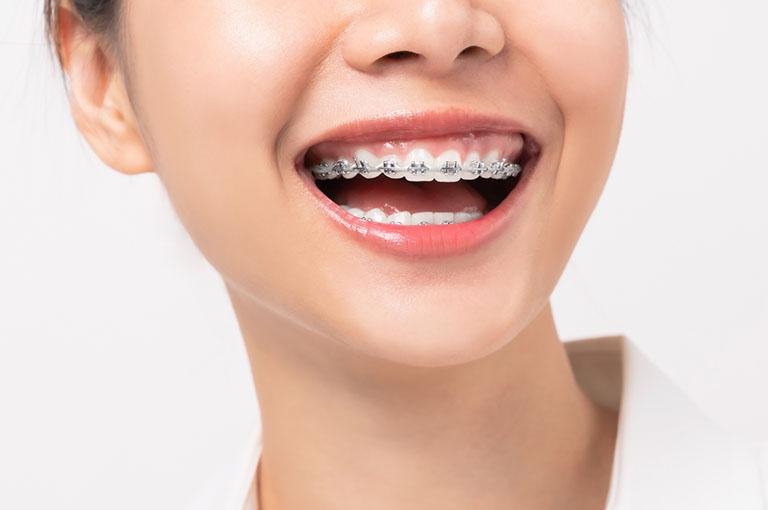 Răng chạy lại sau khi tháo niềng