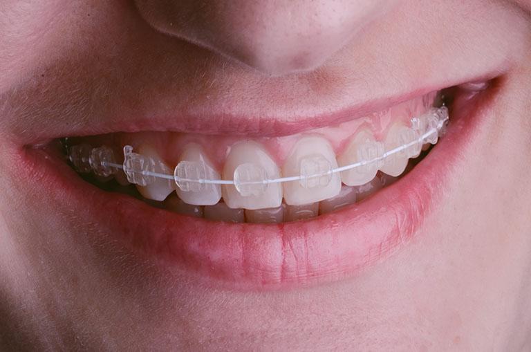 niềng răng có làm răng yếu đi không