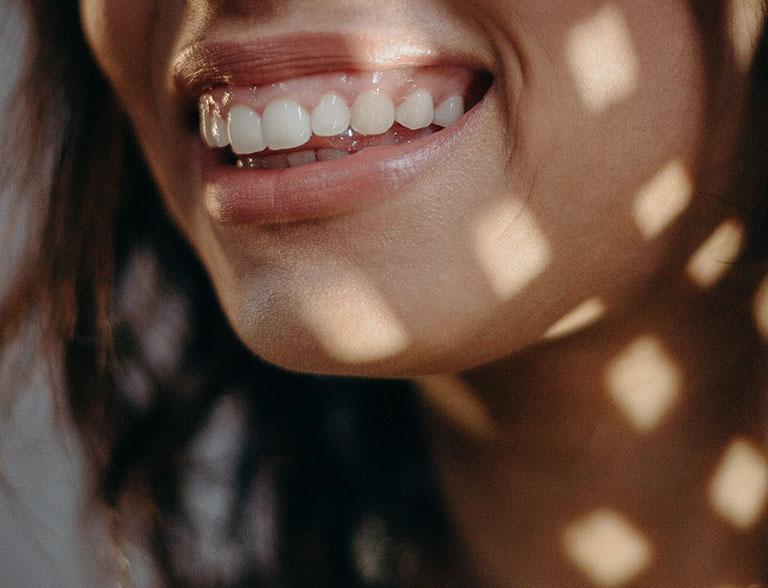 các loại răng hô