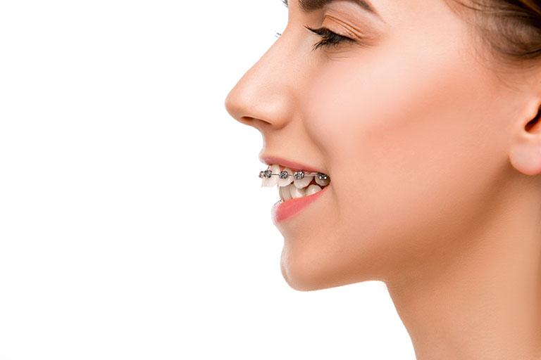 trị răng hô