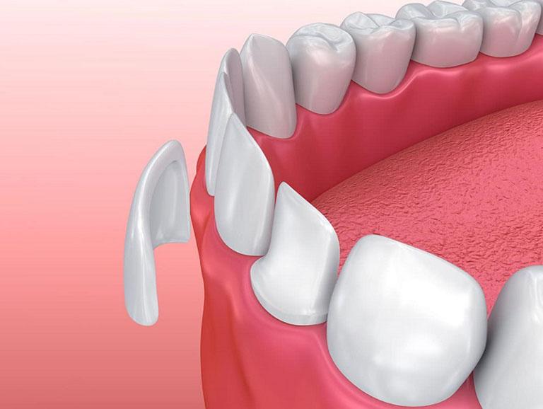 khắc phục răng hô