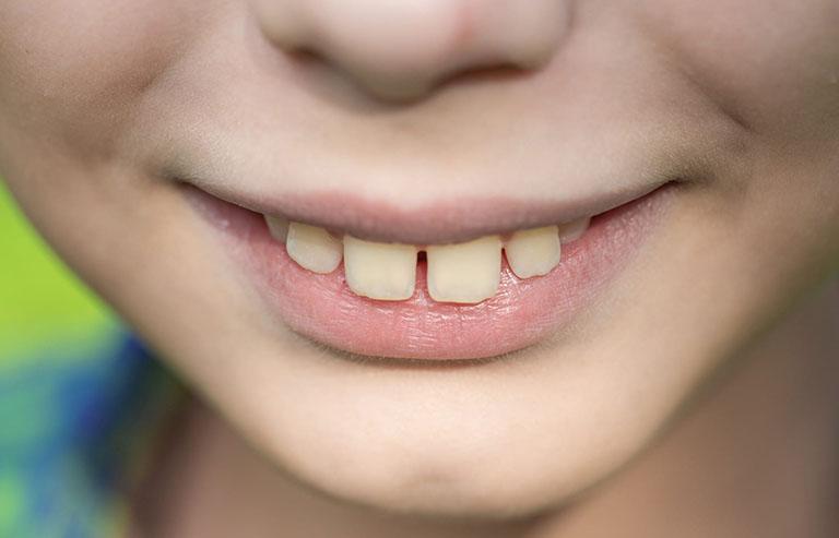 Răng hô vẩu
